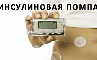Микроинфузионная инсулиновая помпа – новое слово в лечении диабета