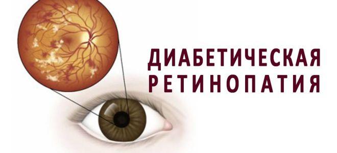 Диабетическая ретинопатия — хотите сохранить зрение, не тяните с лечением
