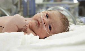 Сахарный диабет у новорожденных детей