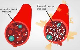 Что означает повышенная глюкоза в крови и моче