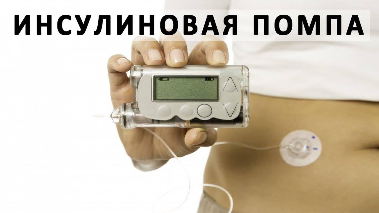 Инсулиновая помпа для лечения диабета