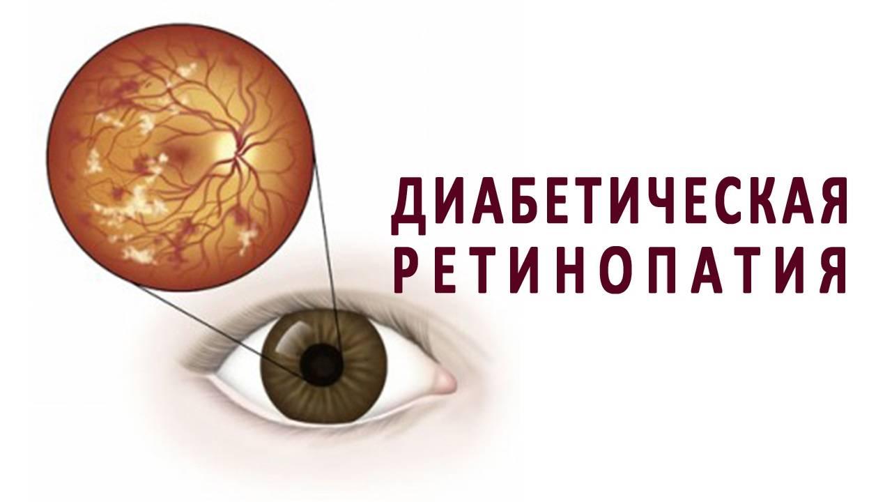 Диабетическая ретинопатия - что это такое, симптомы и лечение