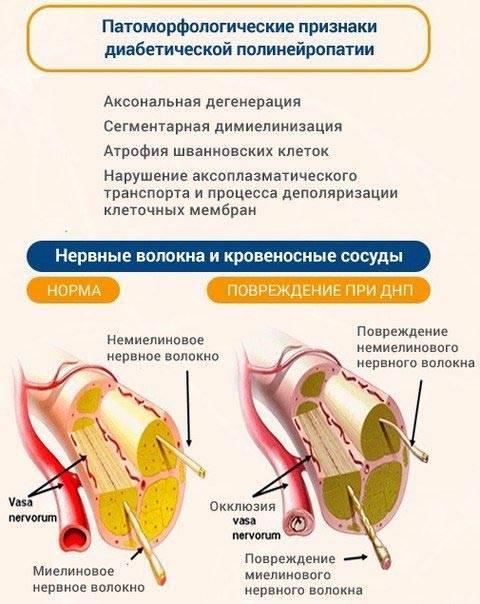 диабетическая полинейропатия симптомы