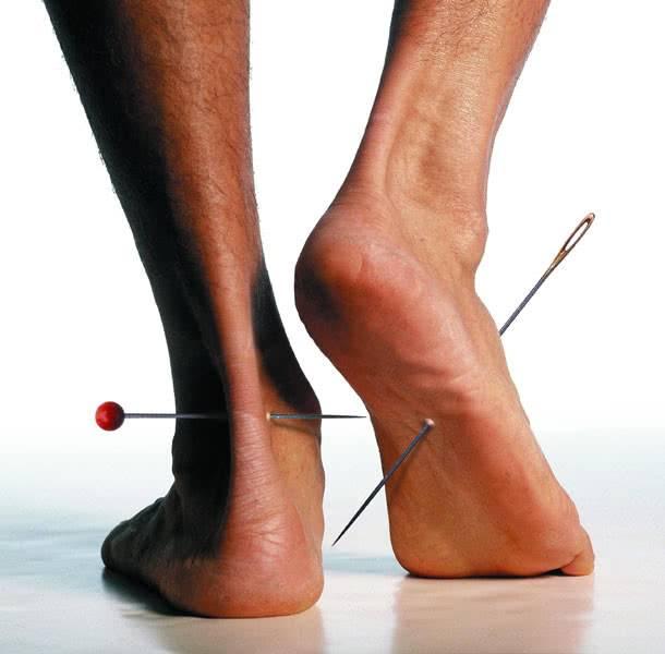 Диабетическая нейропатия ног
