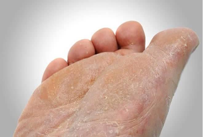 Шелушение ног при диабете