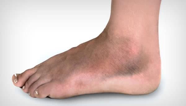 Причина отека ног